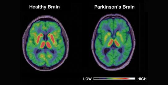Brain energy crisis may spark Parkinson's: Study