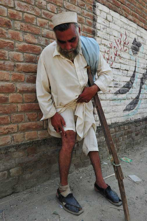 """I don't like my daughter going out to work, but I am helpless,"" said Inamuddin, showing his wounded leg."