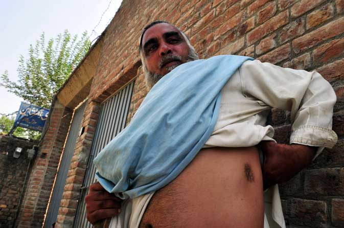 Inamuddin, showing his other wound on his stomach.