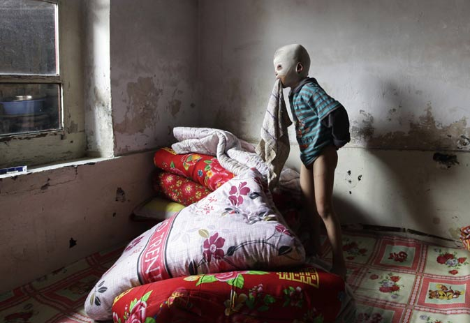 "Wang Gengxiang, known as ""Masked Boy"", holds a towel in his mouth as he plays on a bed in the village of Mijiazhuang on the outskirts of Fenyang, Shanxi province September 9, 2011. Gengxiang, 6, was severely burned in an accident involving a pile of burning straw last winter. Most of the skin on his head was burned off, requiring him to wear a full surgical mask to prevent the scars from becoming infected. Wang's doctors disclosed that they cannot continue his skin-graft surgery until his damaged trachea is strong"