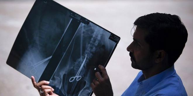 Safdar Ali Shah, 36, displays his medical X-ray sheet with a scissor in his lower abdomen outside the Karachi Press Club April 9, 2012.