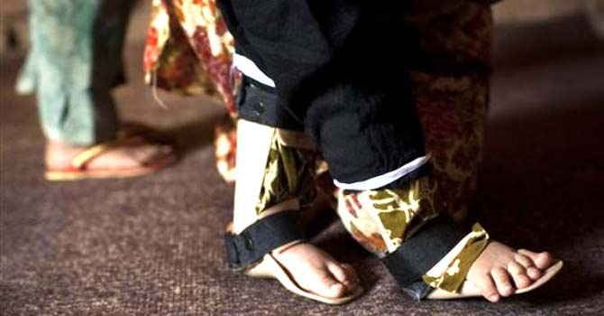 A 13-month-old girl whose legs are bound in small plastic braces, tries to use her legs at her family's house in Karachi. – File photo by AP