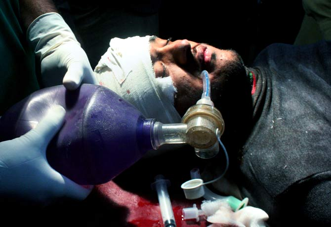 A Pakistani injured polio worker is treated at a local hospital in Peshawar. ? Photo by AP