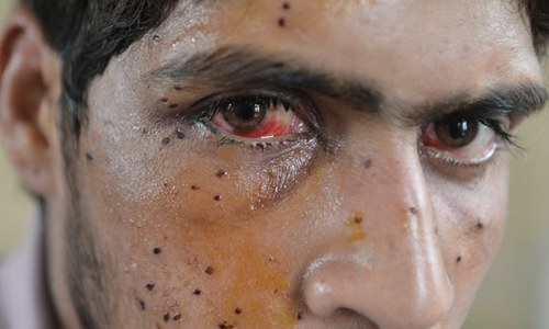 Injured Kashmiris in IHK blocked from medical help during clashes with Indian forces: report