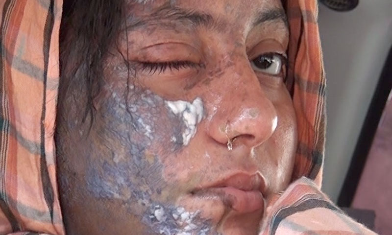 Photo shows acid-burn marks on the face of 18-year-old actress Bushra shortly before she was taken to Peshawar's Lady Reading Hospital.—Photo courtesy Zahir Shah Sherazi