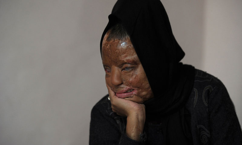 Indian acid attack survivor Sonali Mukherjee poses at her home in New Delhi.  When Sonali rejected the advances of three of her fellow students, they responded by melting her face with acid. —AFP Photo