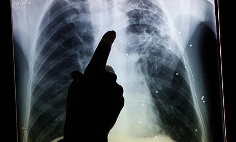 A radiographer points to a file X-ray of a patient diagnosed with tuberculosis. — Photo AP  Read more: http://www.ctvnews.ca/health/london-using-x-ray-equipped-van-to-find-tuberculosis-patients-1.1509254#ixzz2ib2yndkP