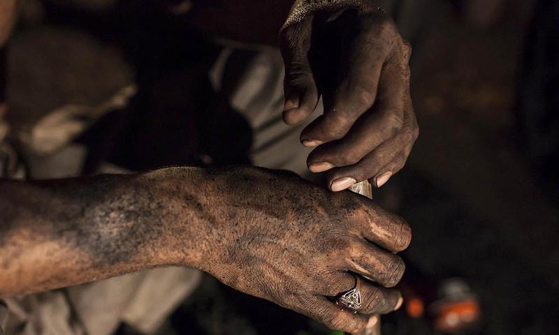 کوئلہ نکالتے ہوئے مزدور کے  ہاتھوں پر لگی مٹی۔