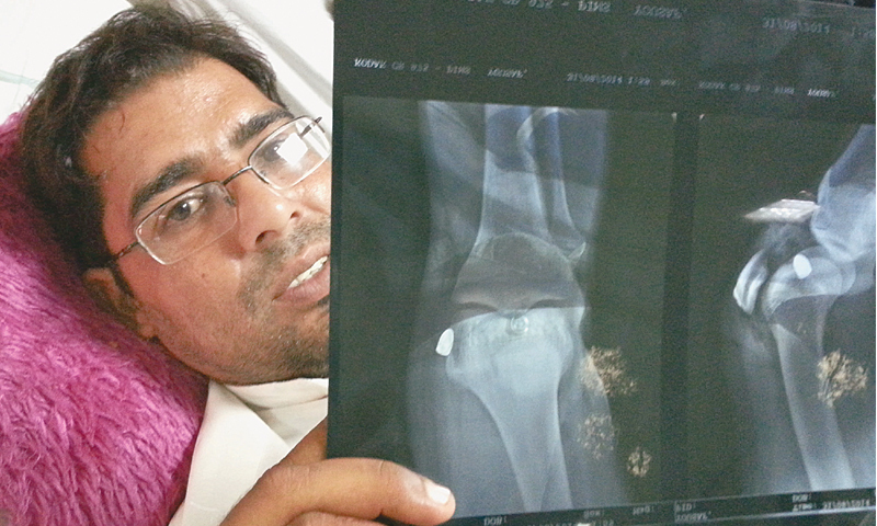 Mohammad Yousaf displays his X-ray scan, showing a bullet-shaped 'foreign object' that is lodged in his knee. — Dawn