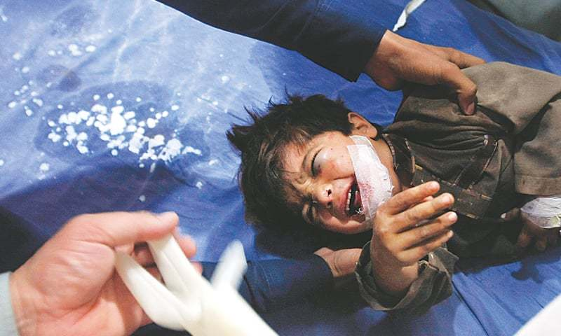 Peshawar: An injured boy is being treated at a hospital.—AP