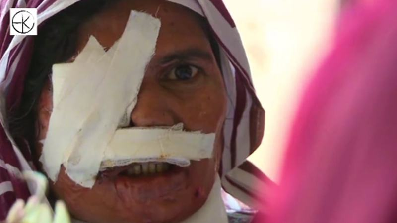 A still from the documentary shows an injured woman.