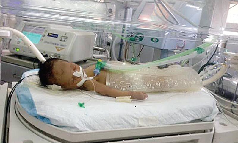 Hospitals Lack Machines For Treating Illness That Kills
