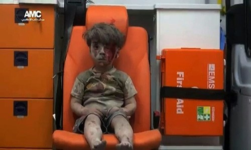 Brother of Syrian boy pictured in Aleppo dies of his wounds