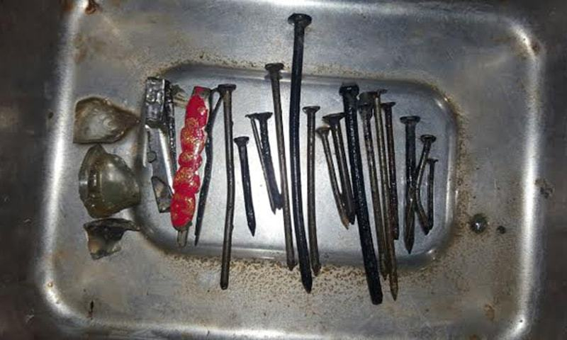 Peshawar doctors perform surgery to remove 22 metal, glass objects from woman's stomach