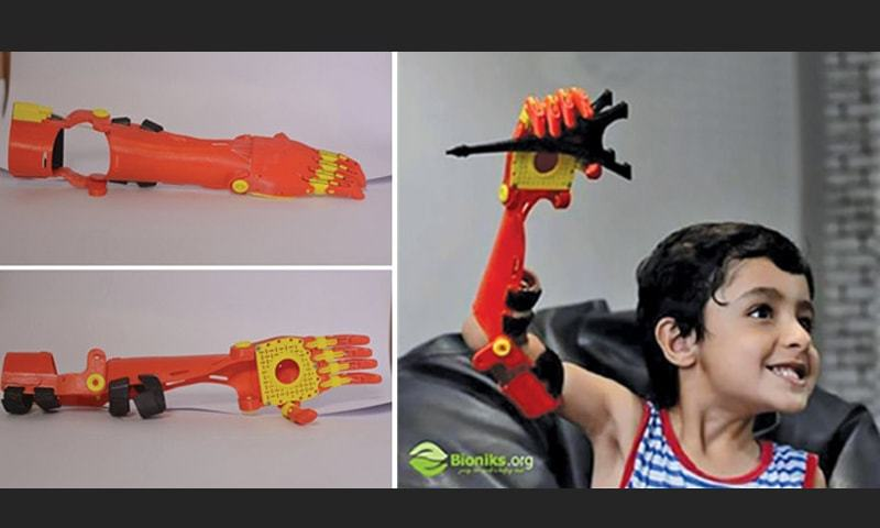 Mir Bayyan Baloch, a five-year-old boy with an arm deformity, became the first child in Pakistan to receive a specially-designed 3D printed mechanical (or manual) prosthetic.
