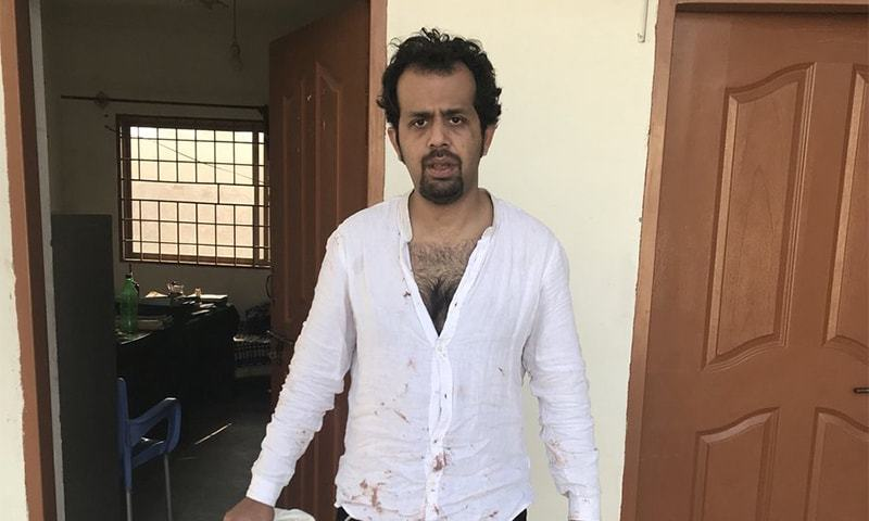 Journalist Taha Siddiqui at a police station after being beaten by armed men.─Photo courtesy: Twitter