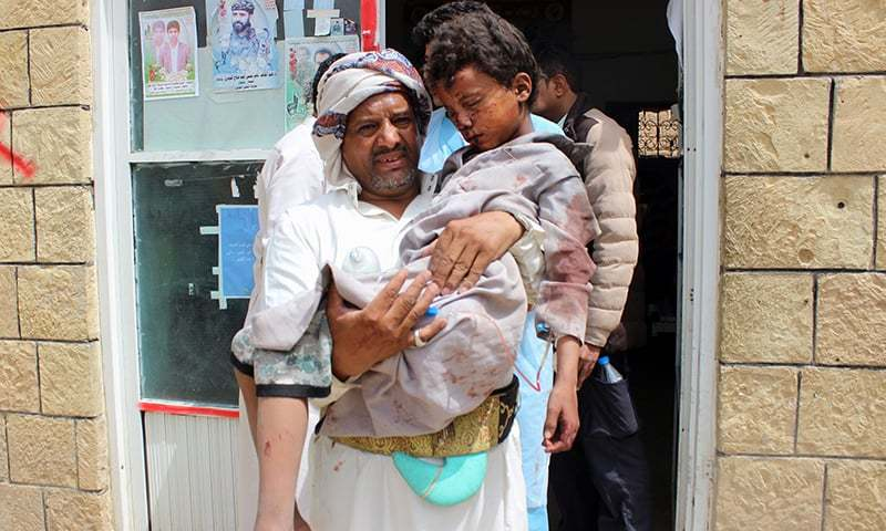 A man transports a child to a hospital after he was wounded in a Saudi-led coalition air strike on the Houthis stronghold province of Saada. —AFP