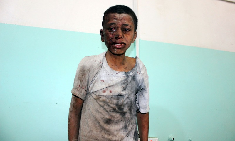 A Yemeni child awaits treatment at a hospital after he was wounded in a reported air strike on the rebel stronghold of Saada on August 9. — AFP