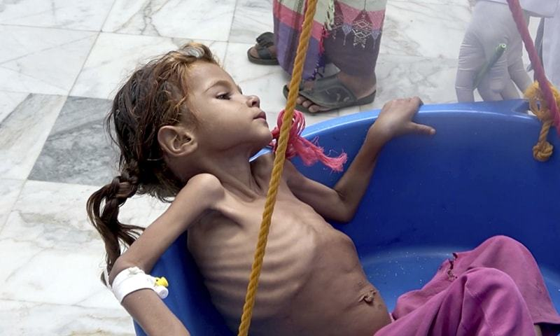 """In this August 25, 2018 file image made from video, a severely malnourished seven-year-old Amal Hussein — whose name means """"hope"""" in Arabic, is weighed at the Aslam Health Center in Hajjah, Yemen. —AP"""