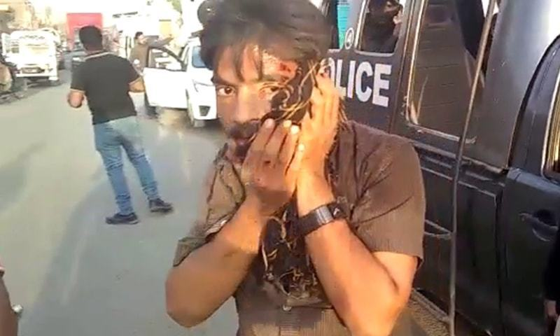 An official injured in the violence during an anti-encroachment drive in Korangi on Tuesday. — DawnNewsTV