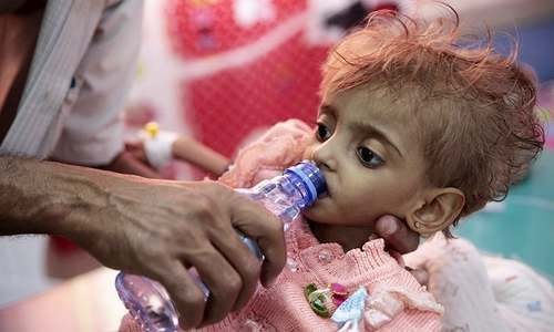 In this Sept 27, 2018, file photo, a father gives water to his malnourished daughter at a feeding centre in a hospital in Hodeida, Yemen.  —AP/File