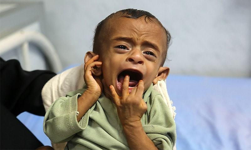 A malnourished Yemeni child receives treatment at a hospital in the Yemeni port city of Hodeidah.─AFP/File