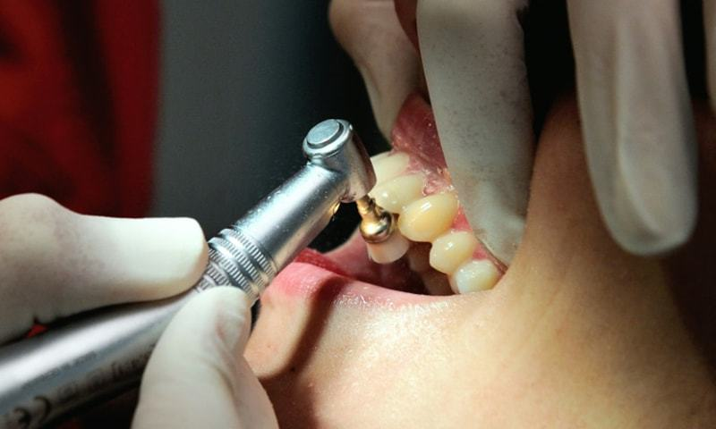 A dentist and a patient is seen in the file photo.— AFP/File