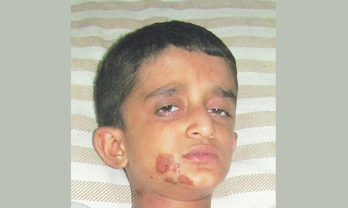 Boy with severed arms brought to Lahore for treatment