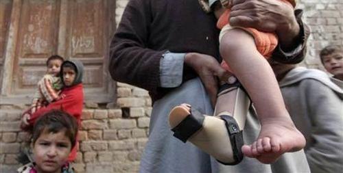 پولیو: پاکستان میں 14سالہ ریکارڈ ٹوٹ گیا،202کیسز رجسٹرڈ