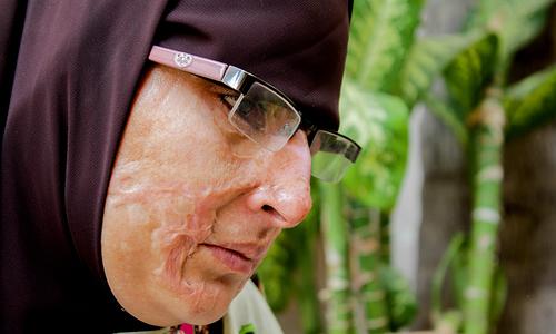 Unforgiving scar: 2014, a year of horrific acid attacks