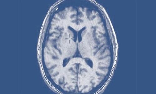 Epilepsy a treatable neurological disorder: experts