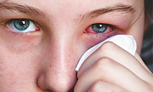 'Cousin marriages main cause of eye diseases'