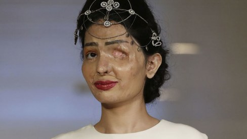 19-year-old Indian acid attack survivor impresses at New York runway