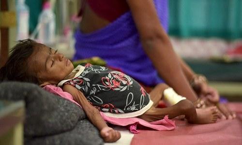 $7 billion: The burden of malnutrition on Pakistan's economy