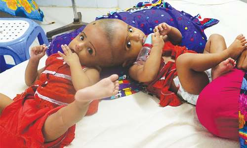 Bangladeshi twins born joined at skull to undergo surgery