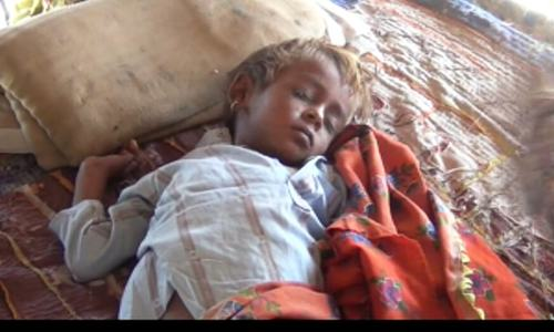 10 children dead, dozens hospitalised in Umerkot measles outbreak