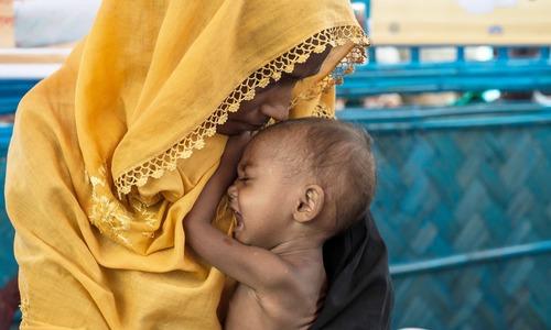 'Skin and bones': doctors fear for malnourished Rohingya kids