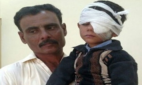 سندھ: اسکول پرنسپل کے 'تشدد' سے 4 سالہ بچہ بینائی سے محروم