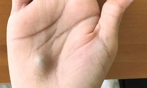 ہاتھ پر ایسا نشان نظر آنا جان لیوا مرض کی علامت