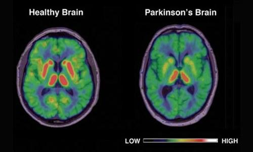 6m suffer from Parkinson's disease worldwide: study
