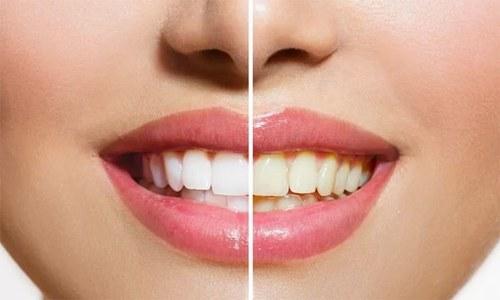 دانتوں کو محفوظ طریقے سے سفید کرنا اب ممکن
