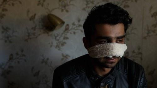 Pakistani student's nose broken in attack in Australia