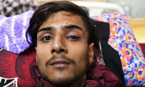 Indian pellet guns in occupied Kashmir kill, blind and enrage