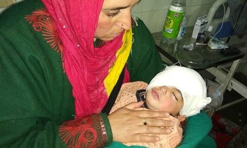 پیلٹ گن کا نشانہ بننے والی کشمیری بچی کے آنکھوں کا آپریشن