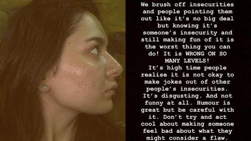 Not okay to joke about people's insecurities: Hania Amir responds to trolls after brave acne post