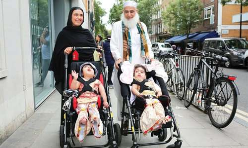 Pakistani conjoined twins separated in UK