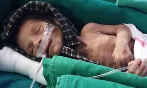 بھارت: قبر سے زندہ نوزائیدہ بچی برآمد