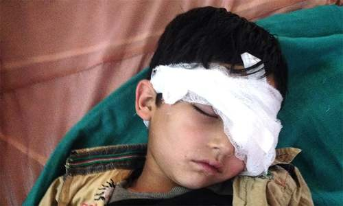 Blinded by pellets, Kashmiri children images stun world