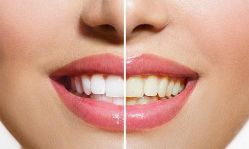 دانتوں پر جمے پلاک اور ٹارٹر کو صاف کرنا چاہتے ہیں؟