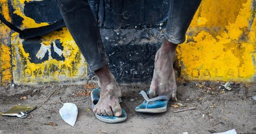 A story of swollen feet: India's migrant workers and the physical toll of walking home during the lockdown